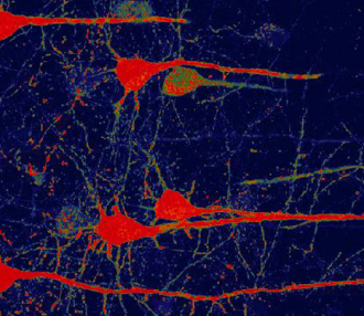Gene Therapy Shows Promise Repairing Brain Tissue Damaged by Stroke
